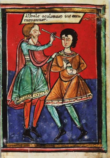 Operace oka na konci 12. století